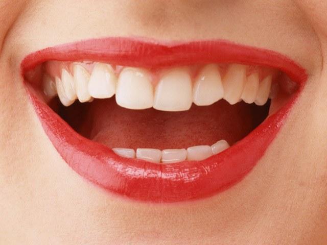 Почему образуется желтый налет на зубах и как от него избавиться