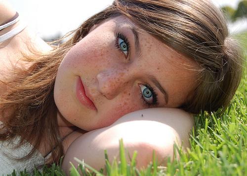 Как осветлить пигментное пятно на лице