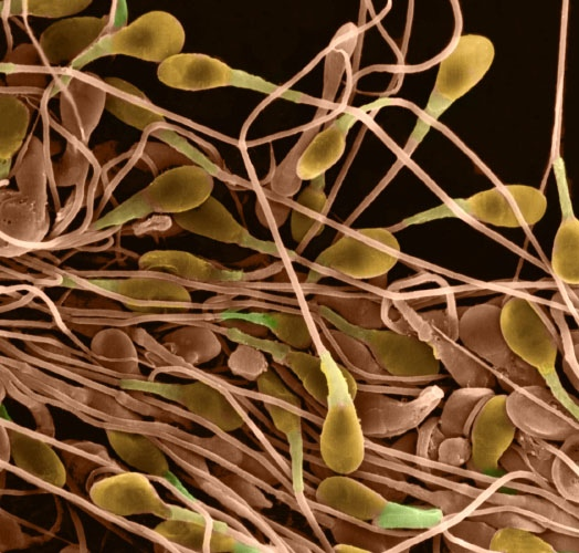 Травы при снижении подвижности сперматозоидов