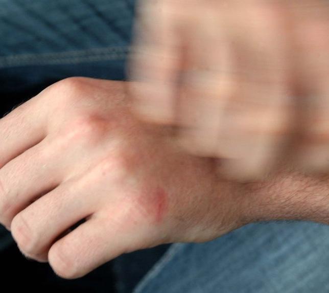 Как вылечить чесотку в домашних условиях 🚩 Чесотка лечение в ...