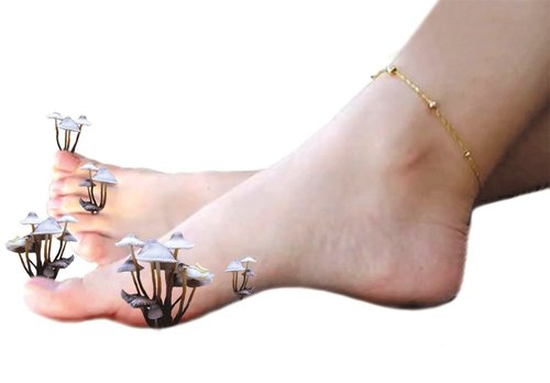 Как увидеть грибок на ногтях ног