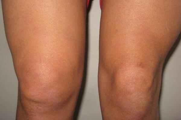 Скопление жидкости в коленном суставе лечение заболевания коленого сустава
