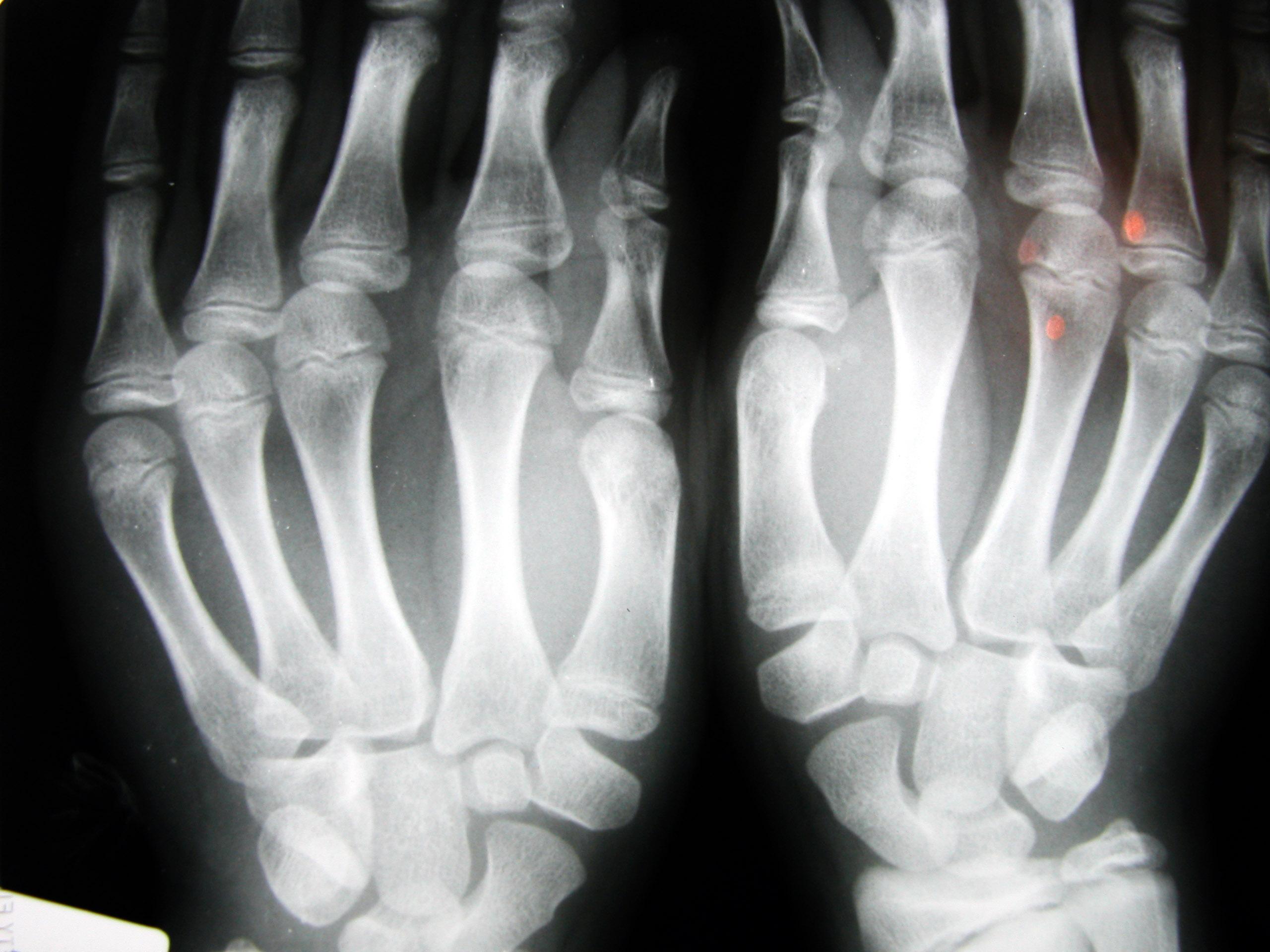 Что делать если выбил палец на руке