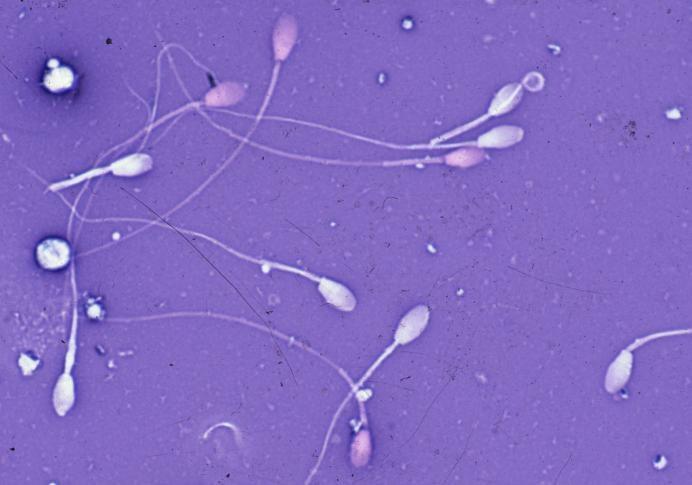 Как образуется сперма 🚩 как накопить много спермы 🚩 Естественные науки