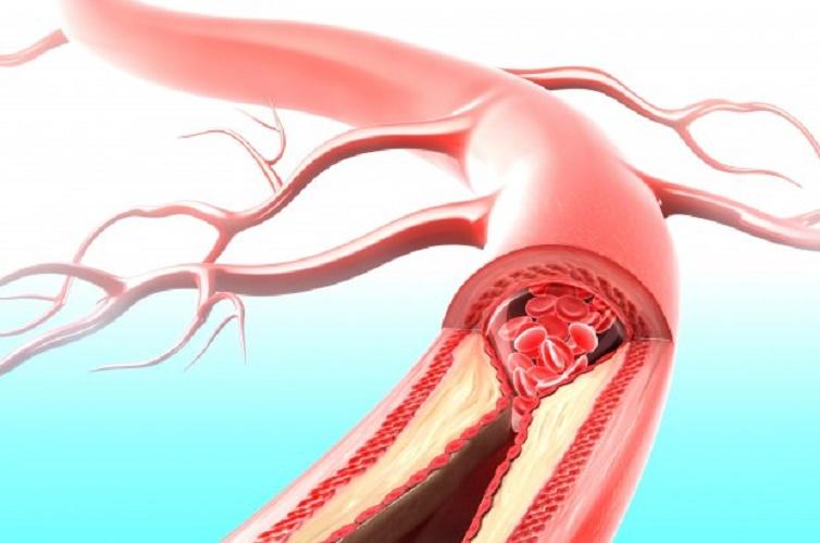 Препараты при атеросклероз артерий