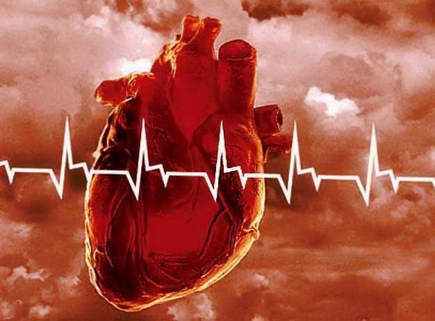 Какие первые признаки инфаркта 🚩 какие симптомы инфаркта ...