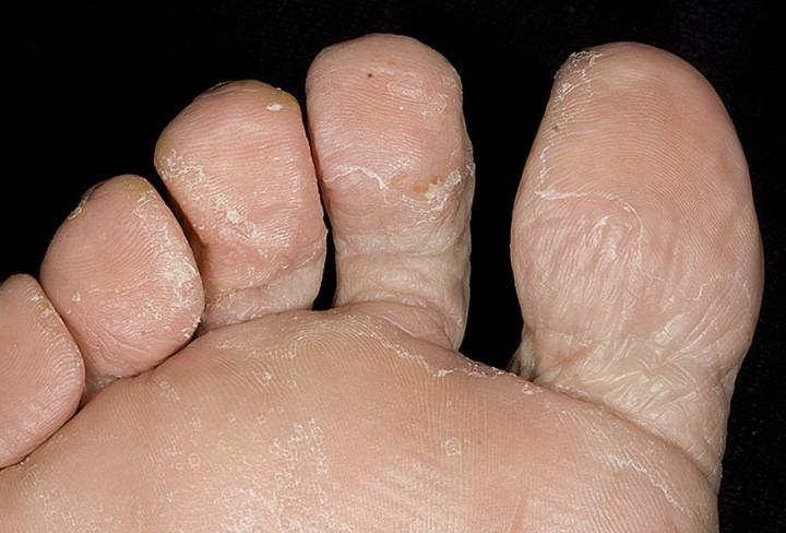 Акрил грибки ногтей