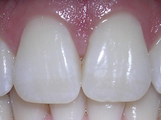 Какой зуб называют глазным 🚩 как зубы связаны с глазным давлением ...