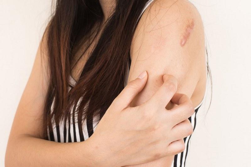 12e0ad12433f Лечение розового лишая 🚩 Лечение болезней