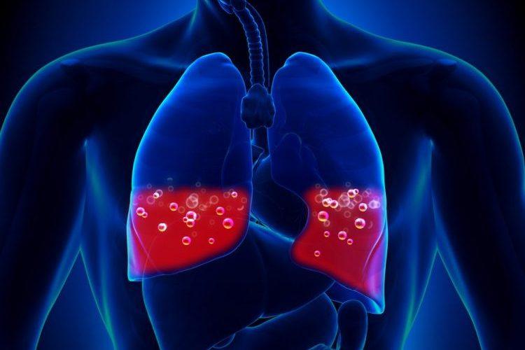 Смерть от инфаркта и отека легких