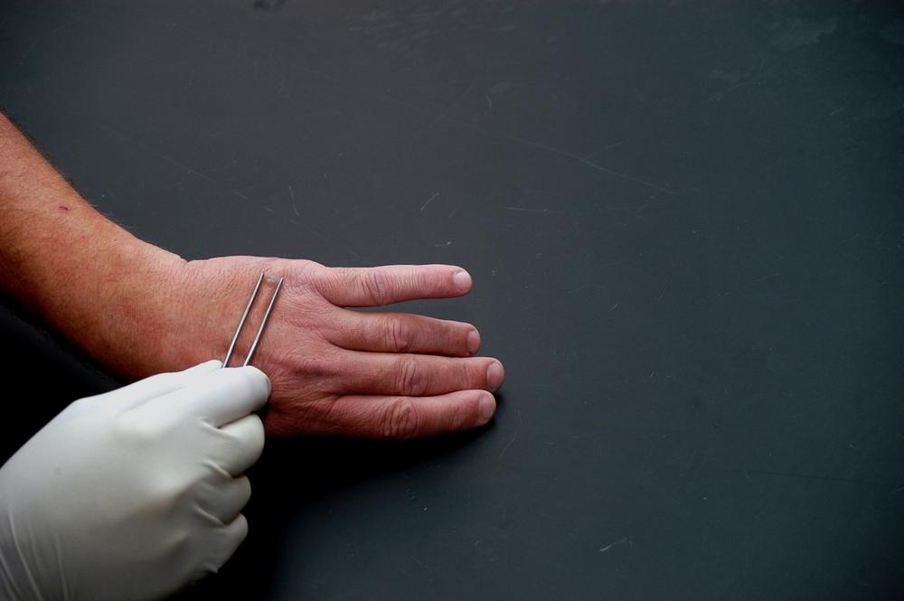 таблетки для удаления паразитов из организма