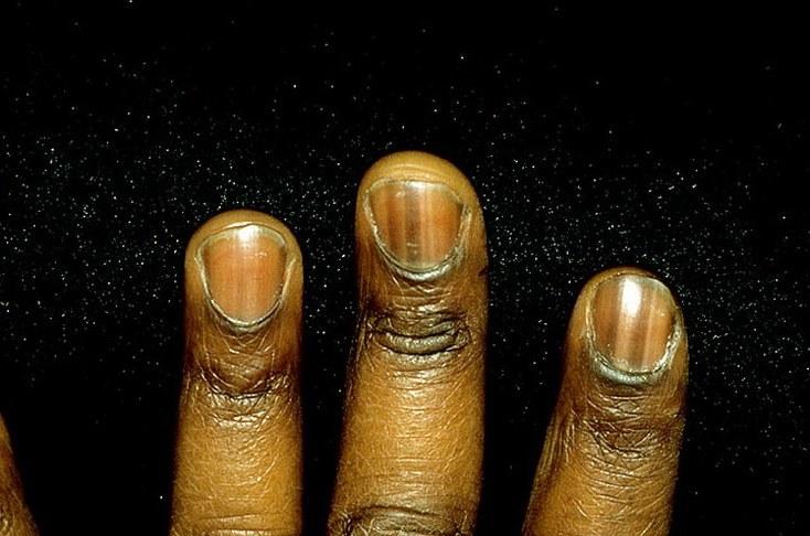 Отчего черные ногти