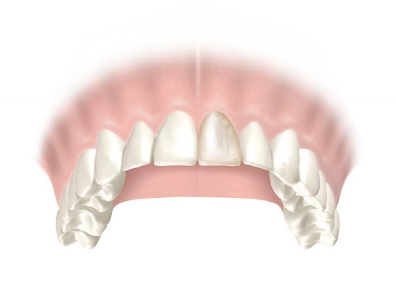 Как выглядит полоска при прорезывании зубов