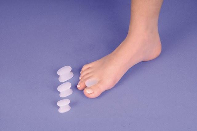 Болит косточка на большом пальце ноги: лечение, причины