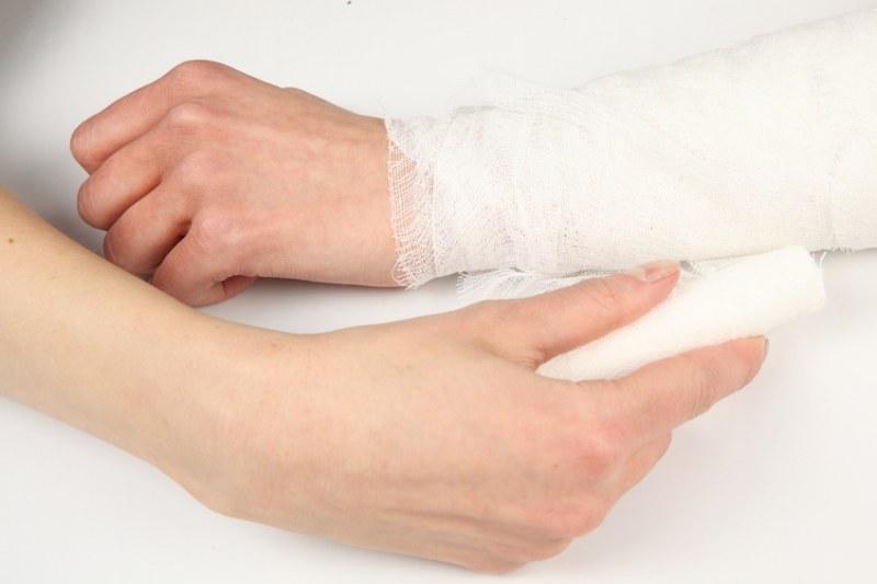 Руки экзема как лечить