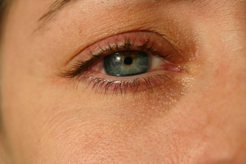 У новорожденного гноится глаз чем лечить в домашних условиях