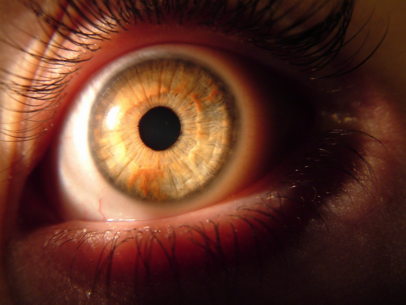 Естественное восстановление зрения по методу бейтса