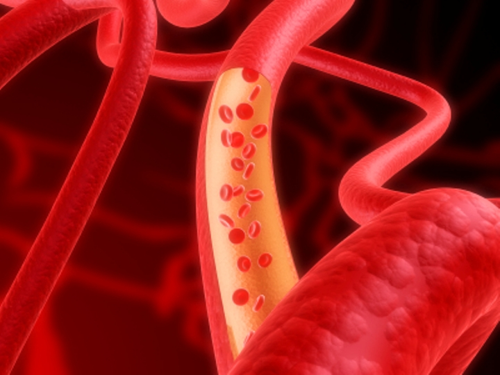 чем лечить повышенный холестерин