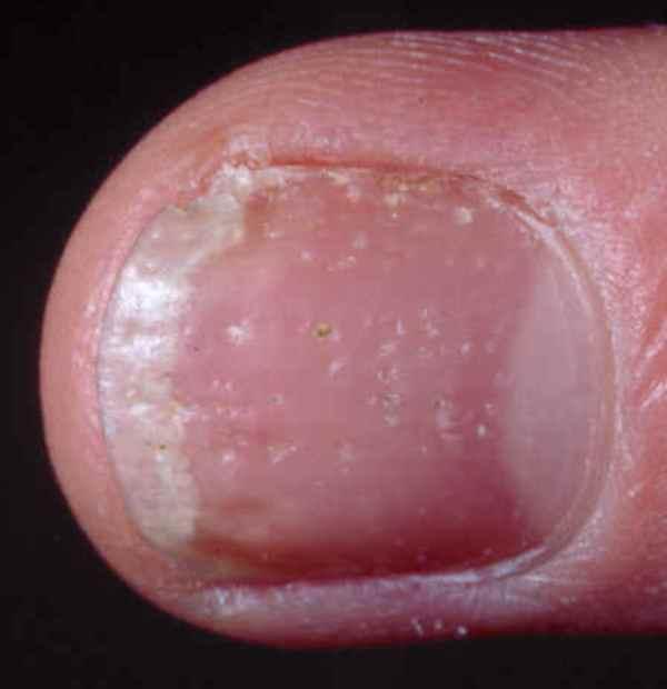 Псориаз ногтей симптомы и лечение в домашних условиях
