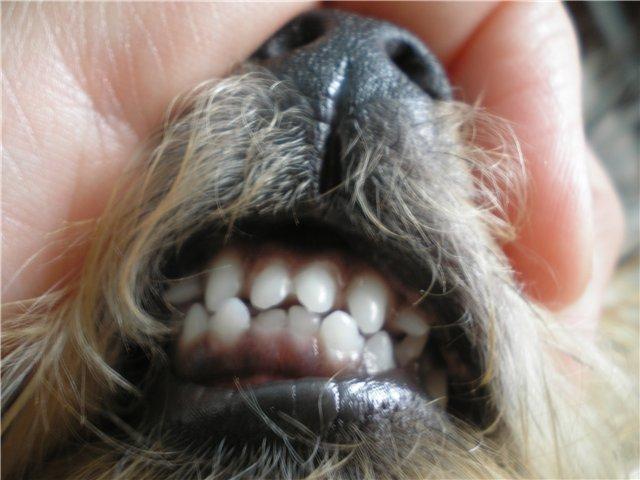 Сколько стоит ринопластика носа чебоксары