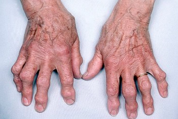 Как лечить варикоз и артрит