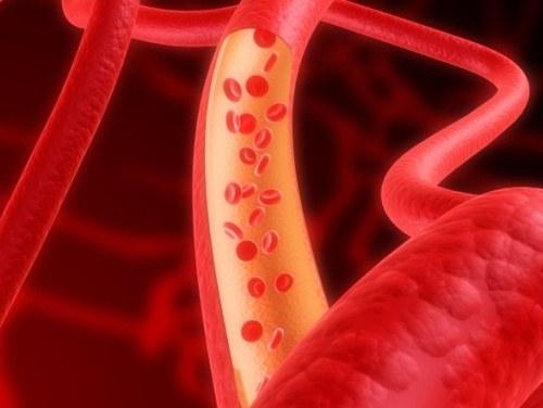 Как убрать холестериновые бляшки в сосудах сердца