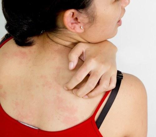 мазь снимающая зуд и раздражение при аллергии
