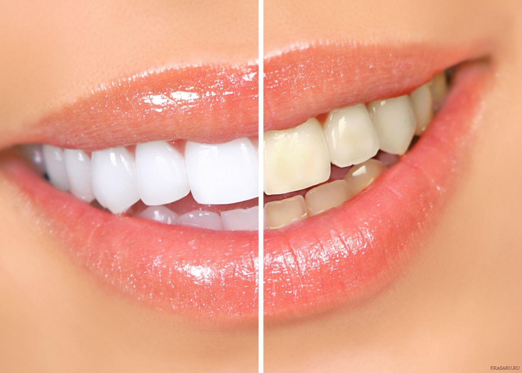 отбеливание зубов перекисью фото меня нашлось немного
