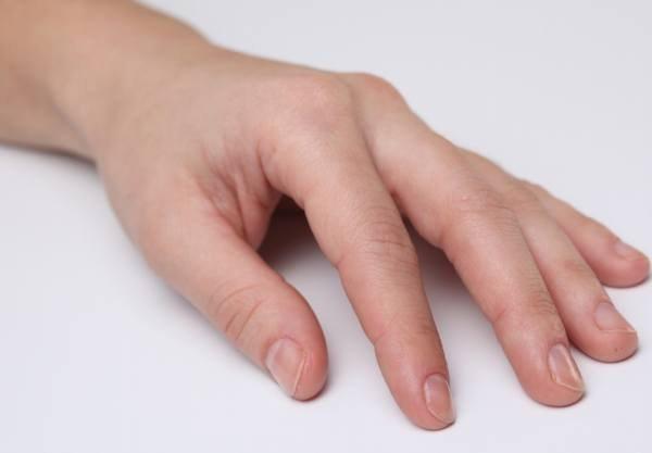 Что делать когда грибок на пальцах ног
