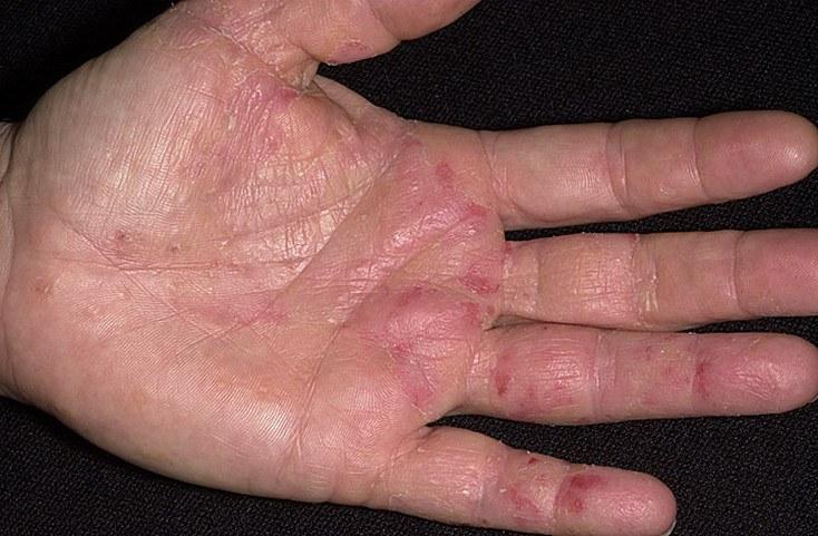 как лечить причину аллергии