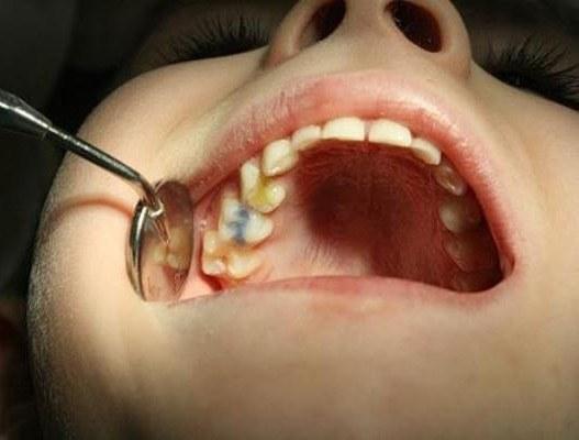 После отбеливания стали чувствительные зубы