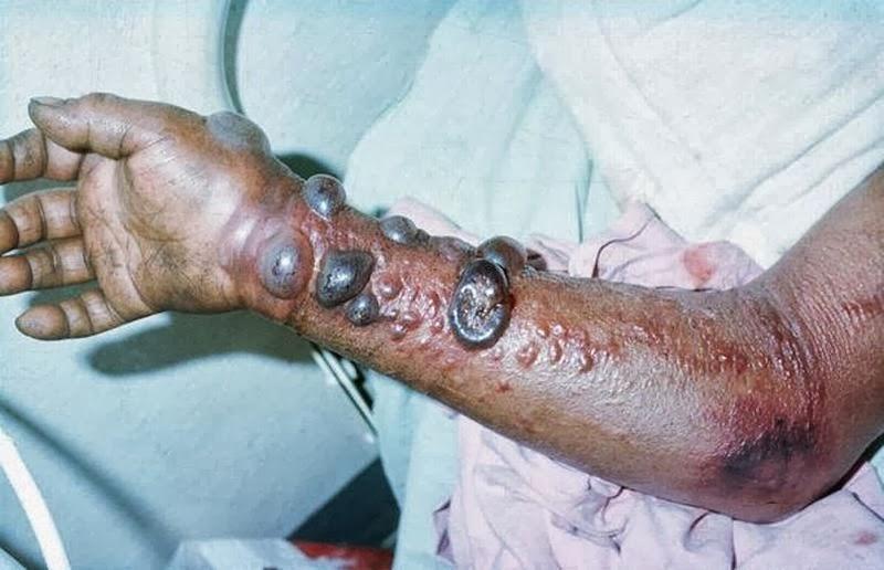 фото больны лихорадка эбола