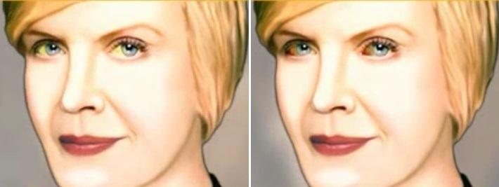 Область вокруг глаз связана с мочеполовой системой. Поэтому стоит насторожиться, если появились припухлости или изменился цвет кожи.