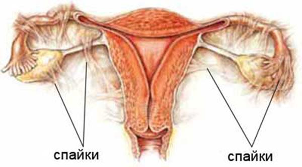 Как избежать бесплодия у женщин