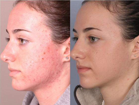 Косметология удаление прыщей на лице видео