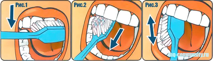 Правильные двиения зубной щетки по зубному ряду