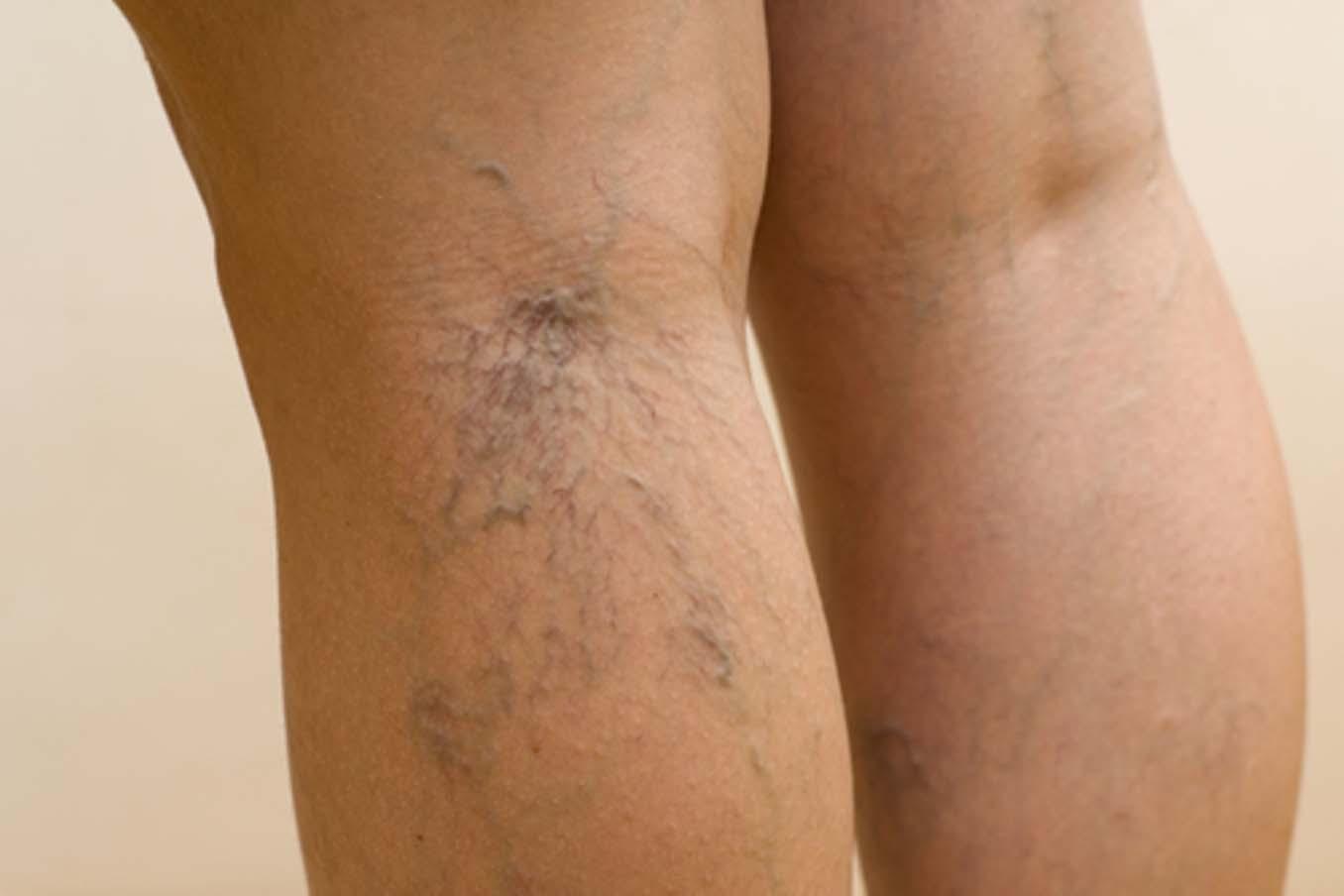 Как долго лечится тромбофлебит нижних конечностей