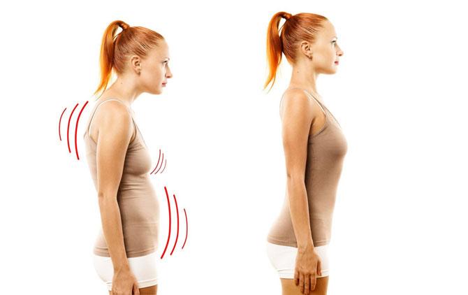 Упражнения при нарушении осанки в картинках