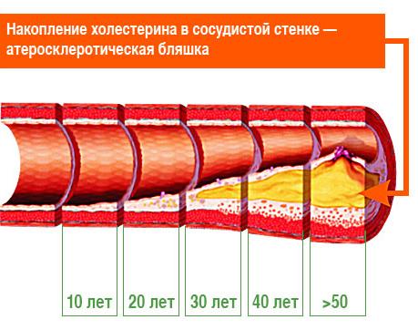 холестерина в крови 9