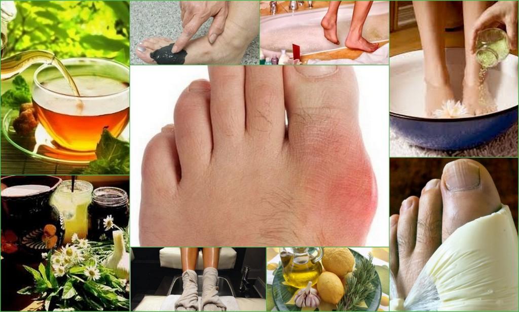 Подагра лечение и диета в домашних условиях