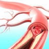 Атеросклероз: симптомы, диагностика, лечение и профилактика