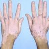 Витилиго: причины, диагностика, лечение