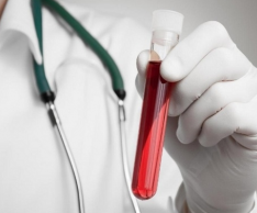 How to treat elevated bilirubin