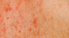 How to treat streptodermii