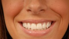 How to get rid of gaps between teeth