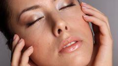 Как вылечить сухую кожу