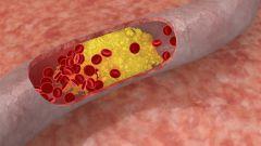 Как снизить повышенный холестерин