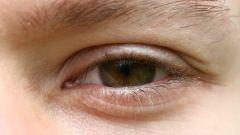 Как залечить синяк под глазом