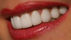 Как отбелить зубы домашним способом