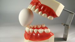 How to store dentures